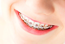 orthodontie peeters & nuttens